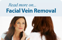 Read more about facial vein removal